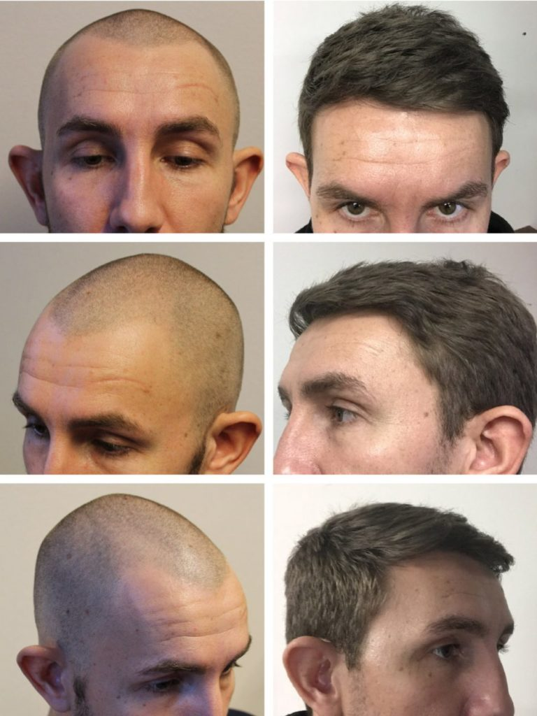 Hair transplant results in a year