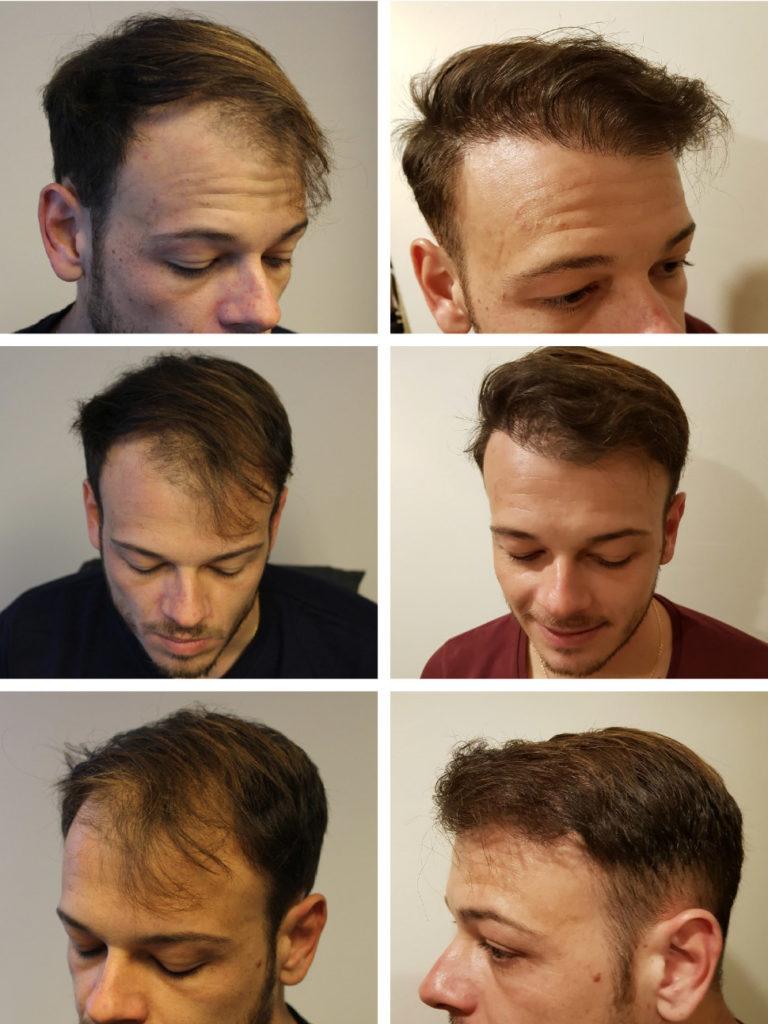Autotrapianto capelli risultati