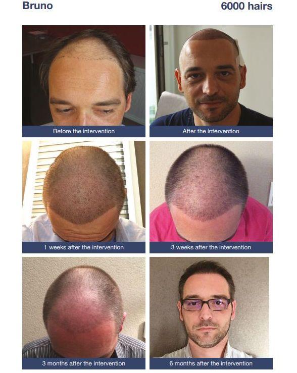 Mature / receding hairline transplant