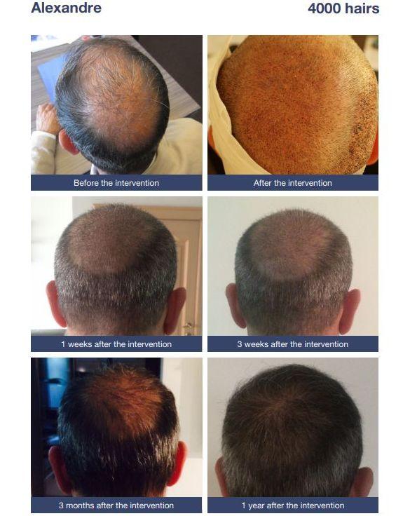 Thinning hair at the vertex: hair transplant
